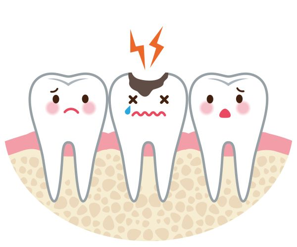 Tips For Reversing Tooth Decay